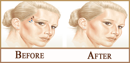 before-after lateral brow lift