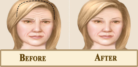 before-after temporal browlift
