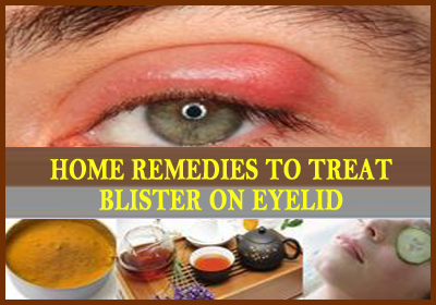 Home Remedies To Treat Blister On Eyelid