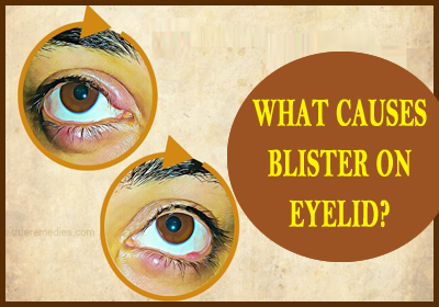 What Causes Blister On Eyelid