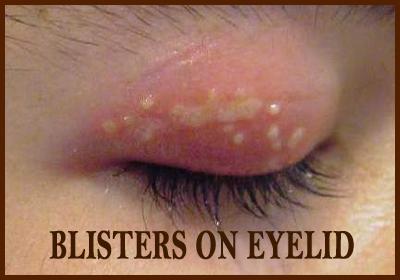 blister on eyelid