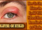 clear blister on eyelid