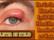 clear blister on eyelid