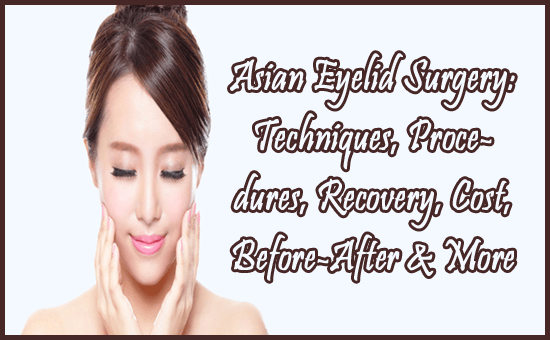 Asian Eyelid Surgery- Techniques, Procedures, Recovery, Cost, Before-After & More