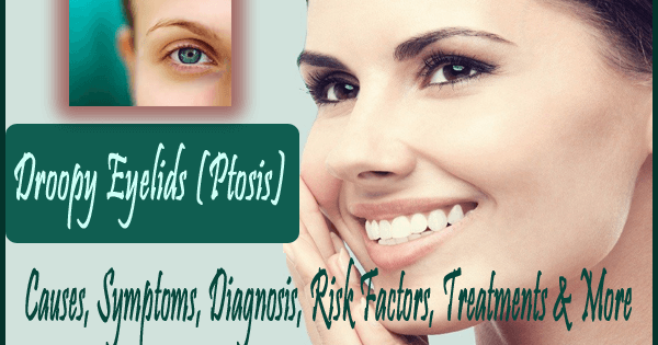 Droopy Eyelids (Ptosis)