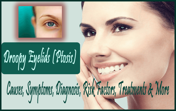 Droopy Eyelids (Ptosis) -  Diagnosis, Exercises, Treatments, Surgery & More