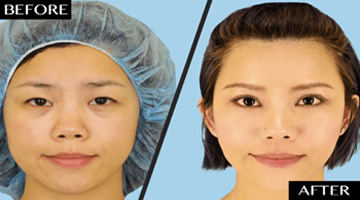 asian blepahraoplasty - before-after