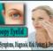 droopy eyelid