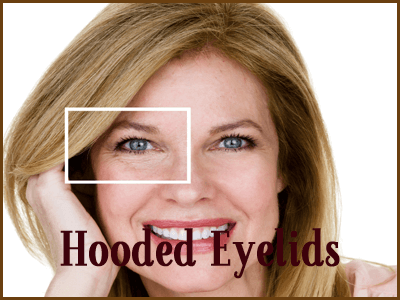 hooded-eyelids