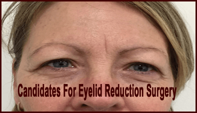 Candidates For Eyelid Reduction Surgery