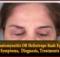 Dermatomyositis OR Heliotrope Rash Eyelid - Causes, Symptoms, Diagnosis, Treatments & More