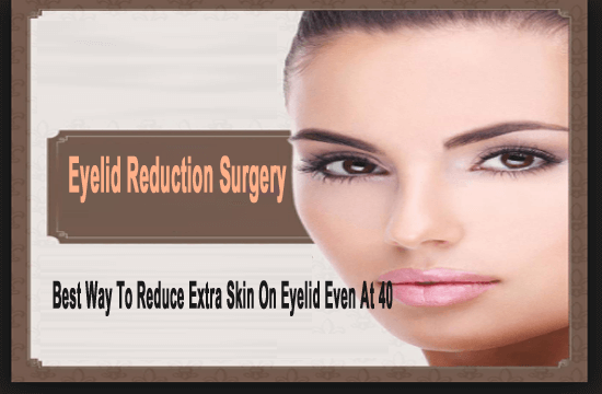 Eyelid Reduction Surgery- Best Way To Reduce Extra Skin On Eyelid Even At 40