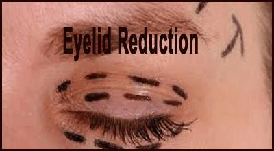 Eyelid Reduction
