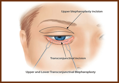transconjuctival eyelid incision