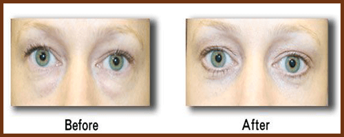 transconjunctival-blepharoplasty-before-and-after
