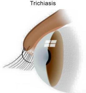 Ingrown-Eyelash