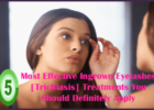 Most Effective Ingrown Eyelashes [Trichiasis] Treatments You Should Definitely Apply