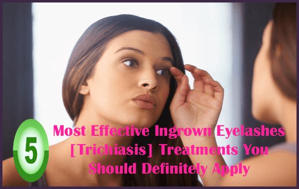 Most Effective Ingrown Eyelashes [Trichiasis] Treatments You Should Definitely Apply