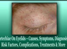 Petechiae On Eyelids