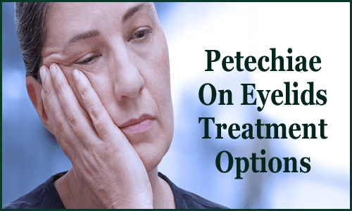 Petechiae On Eyelids Treatment Options