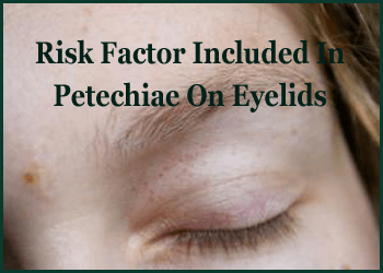 Risk Factor Included In Petechiae On Eyelids