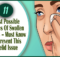 causes of swollen eyelids
