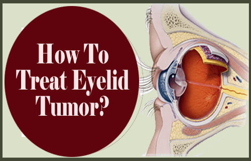 How To Treat Eyelid Tumor