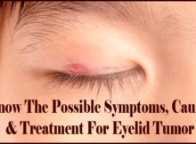 Know The Possible Symptoms, Causes & Treatment For Eyelid Tumor