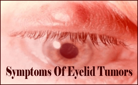 Symptoms Of Eyelid Tumors