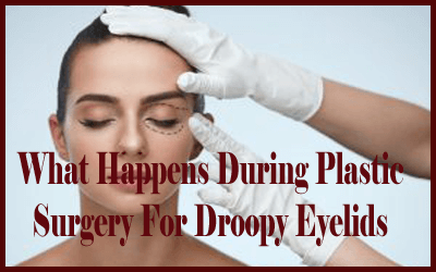 What Happens During Plastic Surgery For Droopy Eyelids copy