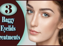 Baggy Eyelids Treatments