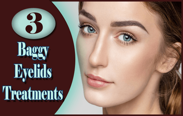 3 Best Possible Baggy Eyelids Treatments You Should Definitely Try
