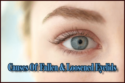 Causes Of Fallen & Loosened Eyelids