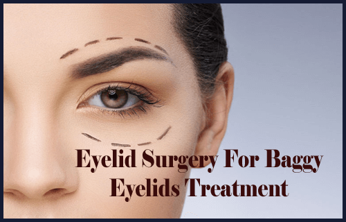 Eyelid Surgery For Baggy Eyelids Treatment
