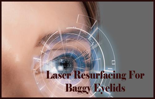 Laser Resurfacing For Baggy Eyelids