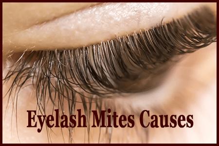 Eyelash Mites Causes Symptoms Treatments Prevention Amp More