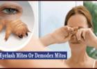 Eyelash Mites or demodex mites