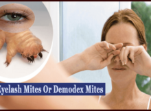 Eyelash Mites or demodex mites