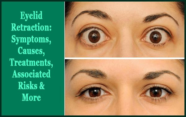 Eyelid Retraction - Symptoms, Causes, Treatments, Associated Risks & More