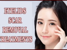 Eyelids Scar Removal Treatments