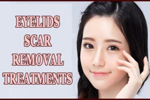 Eyelids Scar Removal Treatments
