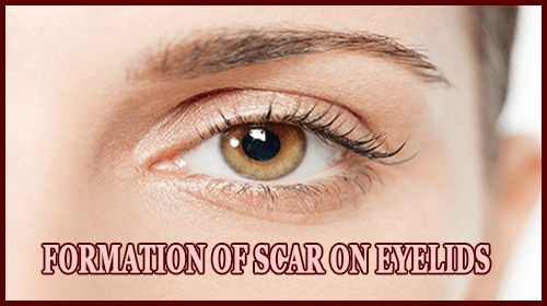 Formation of Scar On Eyelids