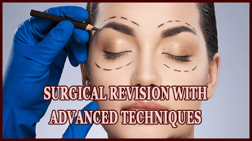 Surgical Revision With Advanced Techniques