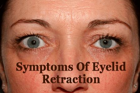 Symptoms Of Eyelid Retraction