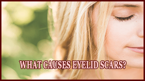 What Causes Eyelid Scars