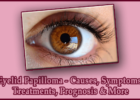 Eyelid Papilloma - Causes, Symptoms, Treatments, Prognosis & More