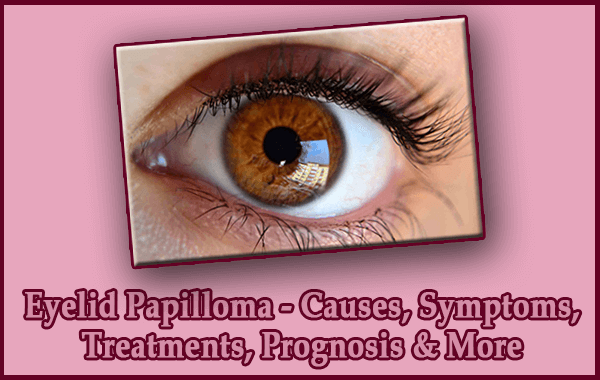 Eyelid Papilloma - Causes, Symptoms, Treatments, Prognosis & More