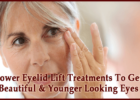 Lower Eyelid Lift Treatments To Get Beautiful & Younger Looking Eyes
