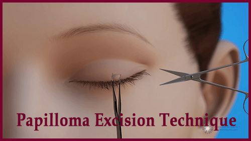 Papilloma Excision Technique