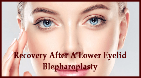 Eye Lift | Eyelid Surgery | Eyelid Lift Surgery in New York |Lower Blepharoplasty Recovery Photos